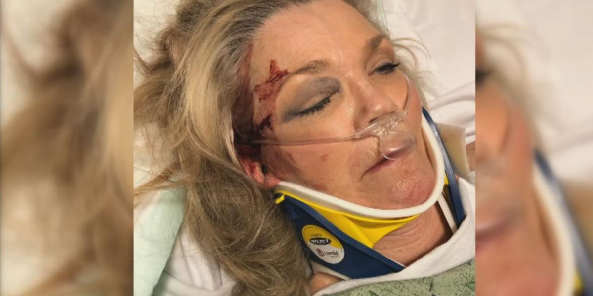 Arizona woman knocked out during brutal, completely random attack