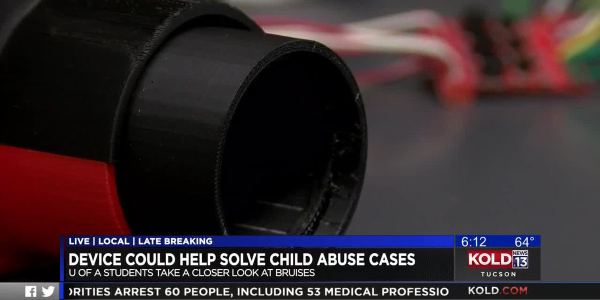Device could help solve child abuse cases