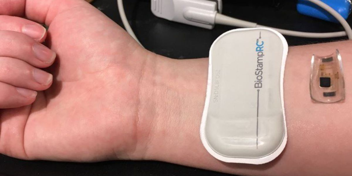 Stretchable, wearable medical technology on track to hit the market soon