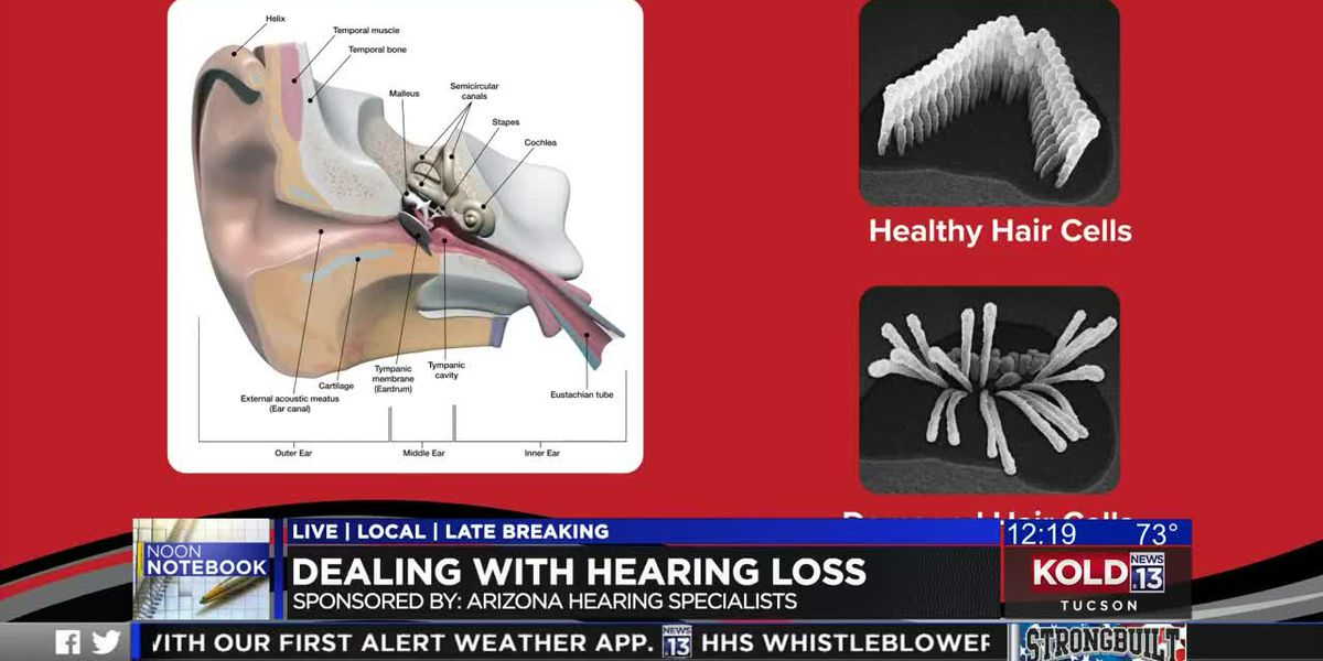 KOLD Noon Notebook: Dealing with hearing loss
