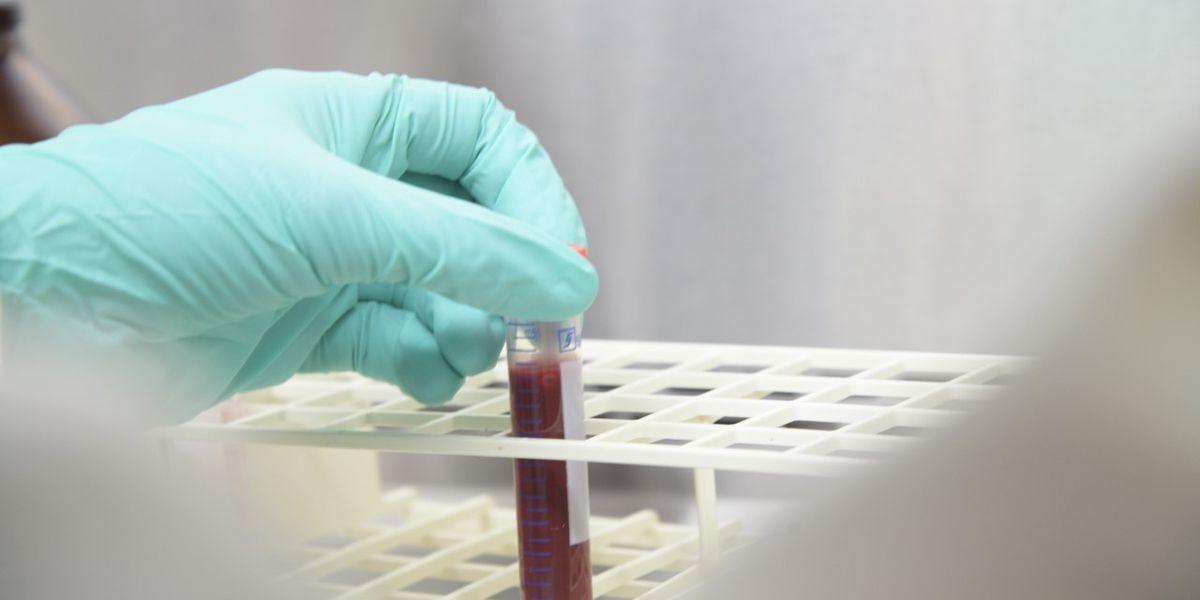 University of Arizona to start antibody testing this week